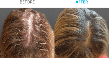Theradome Hair Growth Reviews | Theradome