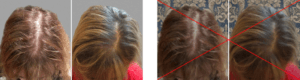 Background of Hair loss before and after photos