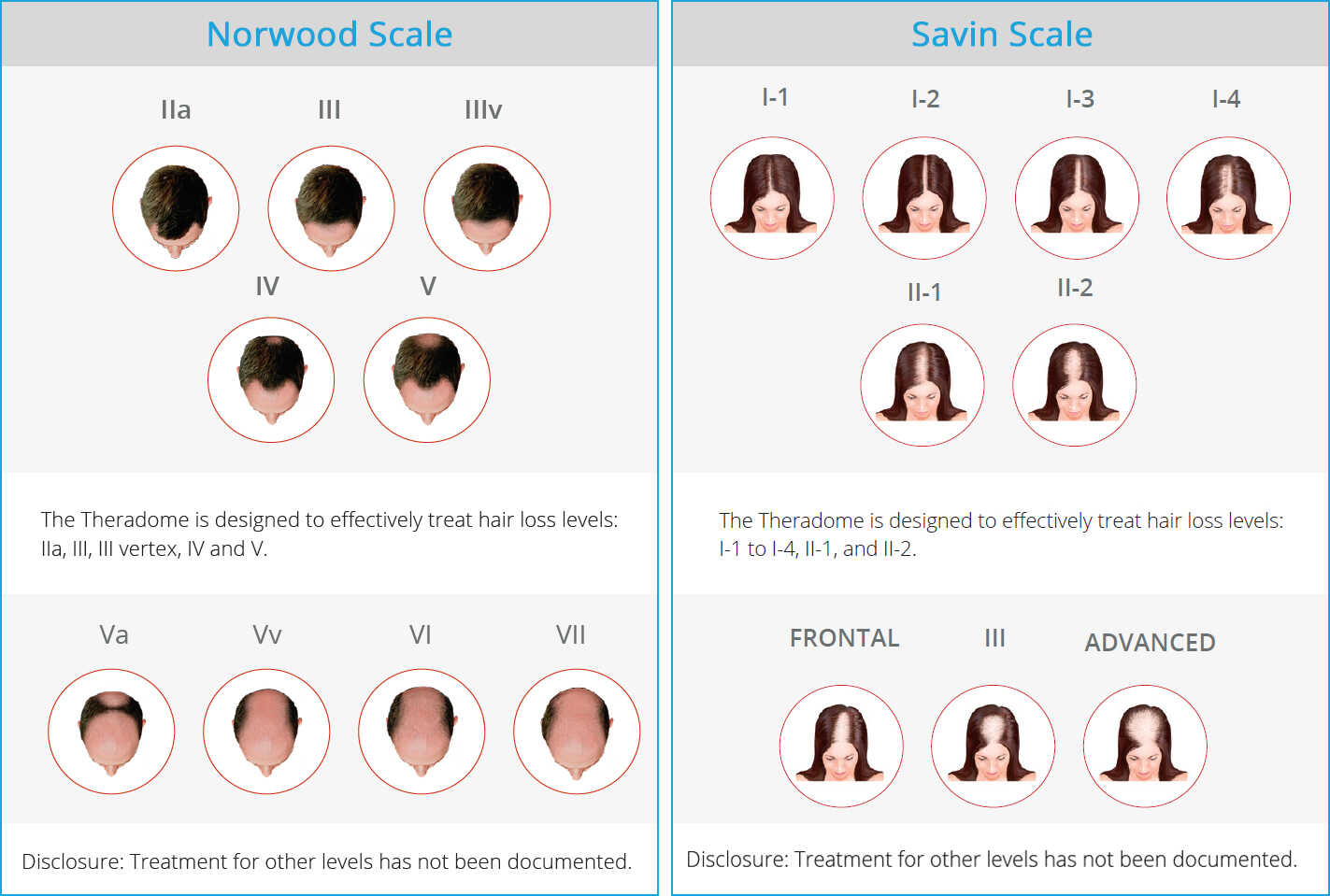 Savin Scale | Norwood Scale