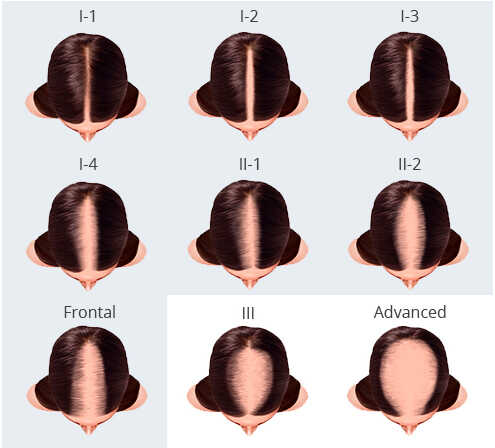 Female Hair Loss Classification