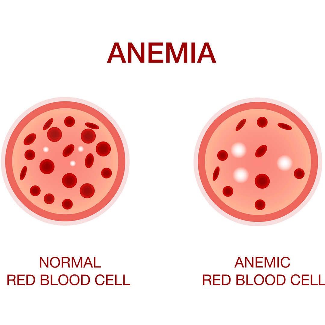 hair loss from anemia