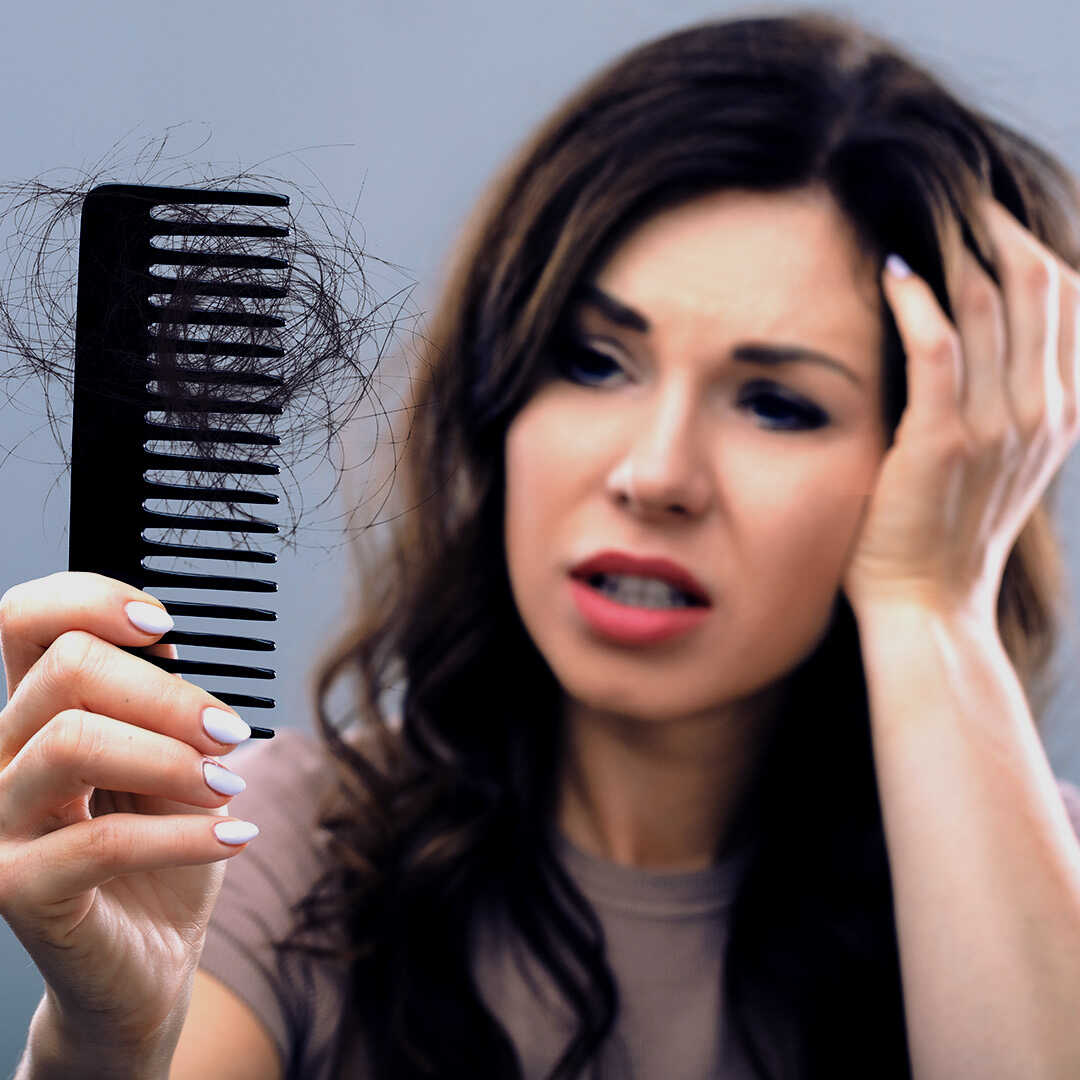 hair loss from stress