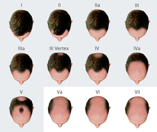 Male Hair Loss Classification